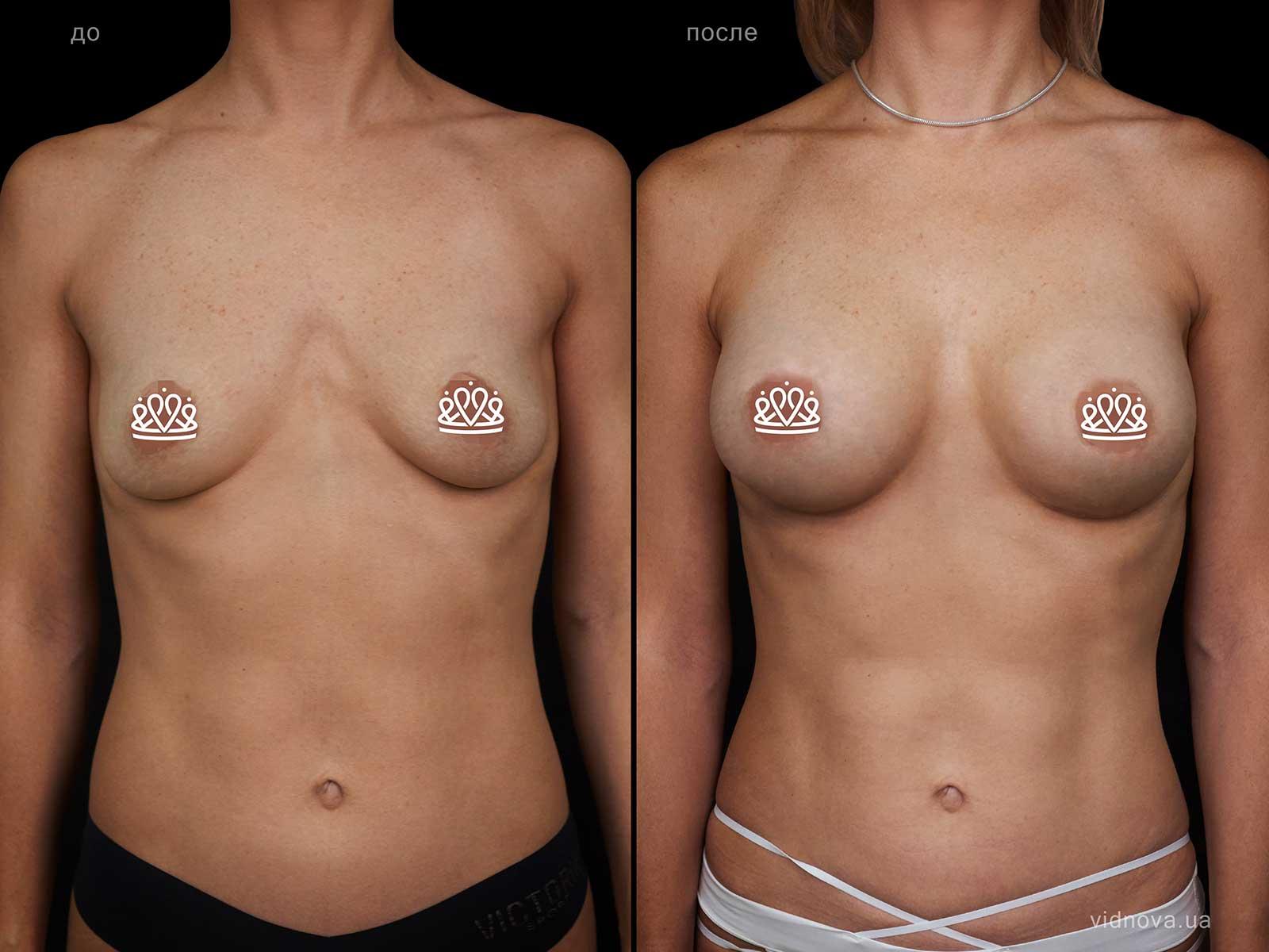 Пластика груди: результаты до и после - Пример №109-0 - Светлана Работенко