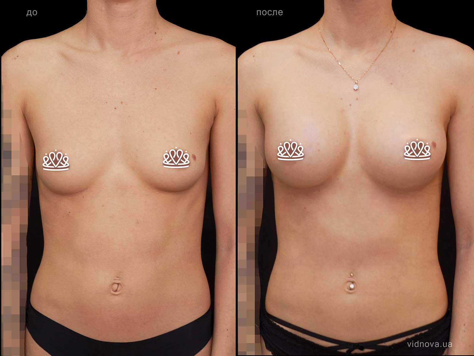 Пластика груди: результаты до и после - Пример №112-0 - Светлана Работенко