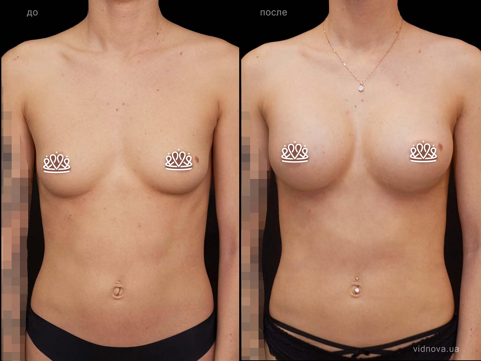 Увеличение груди maket grud rabotenko 1 s 1 1