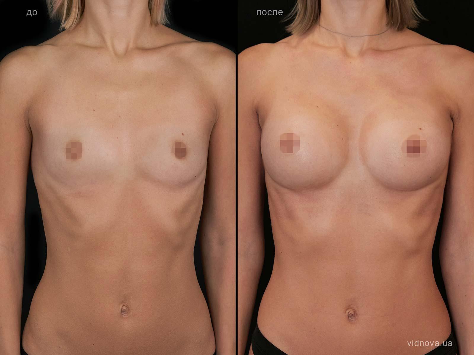 Пластика груди: результаты до и после - Пример №100-0 - Светлана Работенко