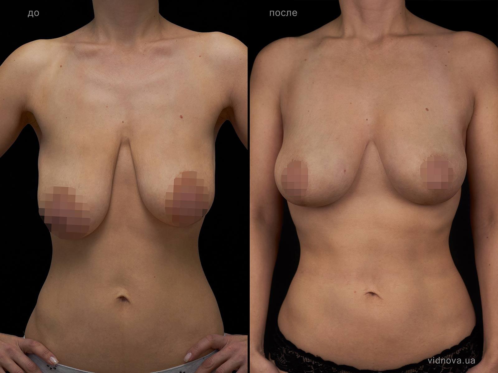 Пластика груди: результаты до и после - Пример №104-0 - Светлана Работенко