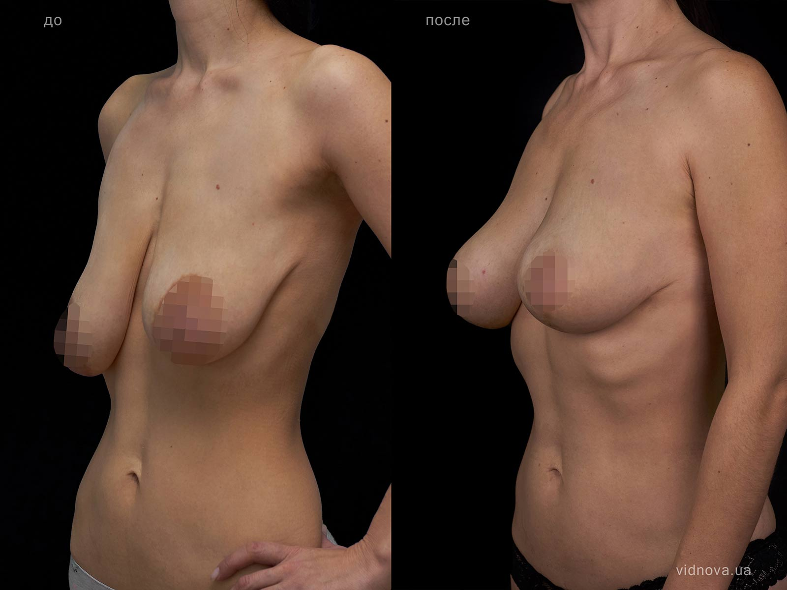 Пластика груди: результаты до и после - Пример №104-1 - Светлана Работенко