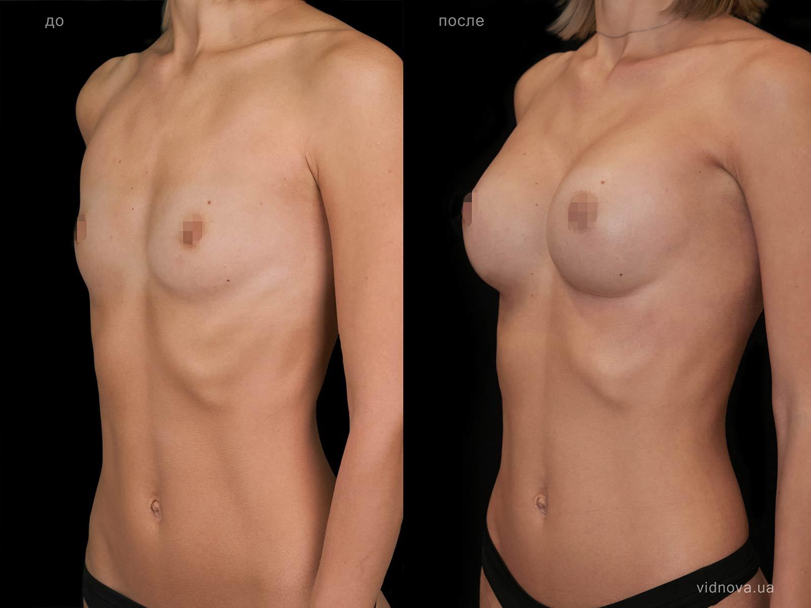 Пластика груди: результаты до и после - Пример №100-1 - Светлана Работенко