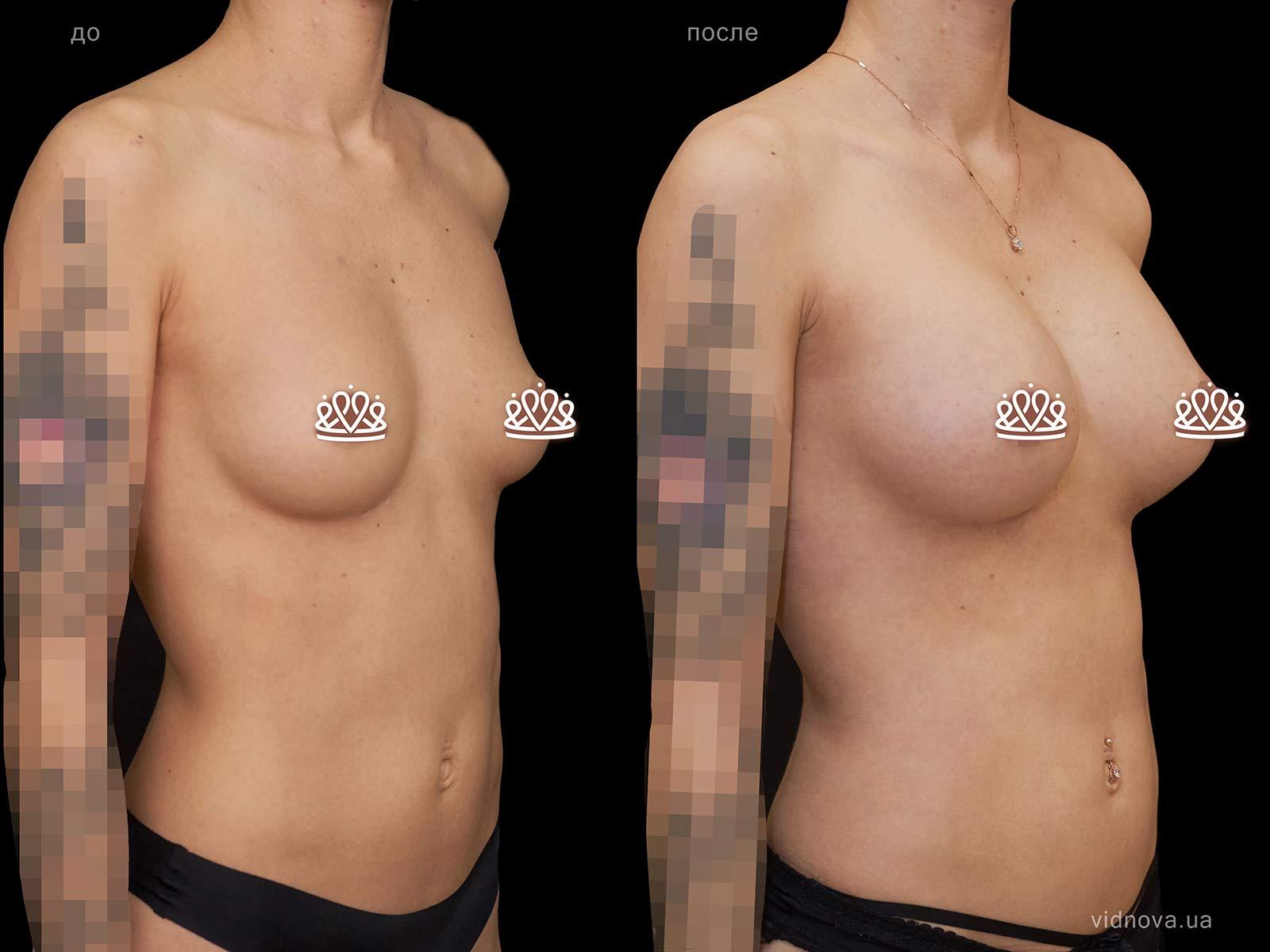 Пластика груди: результаты до и после - Пример №112-1 - Светлана Работенко
