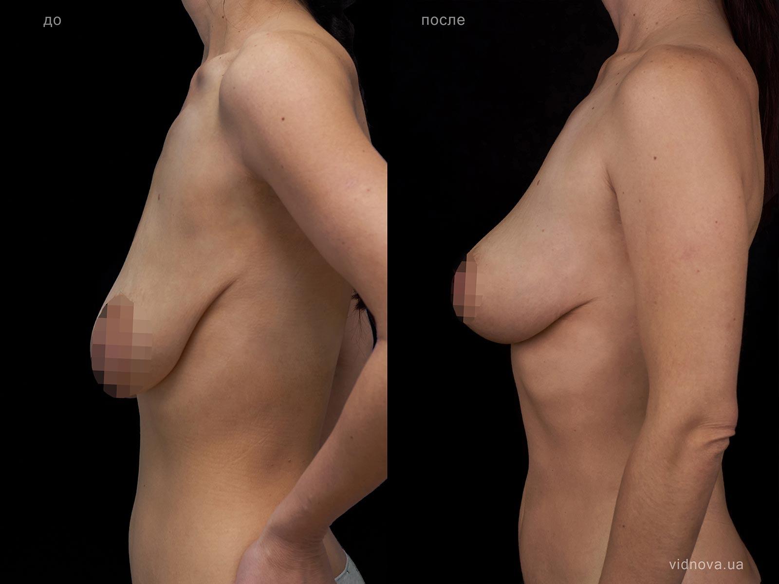 Пластика груди: результаты до и после - Пример №104-2 - Светлана Работенко