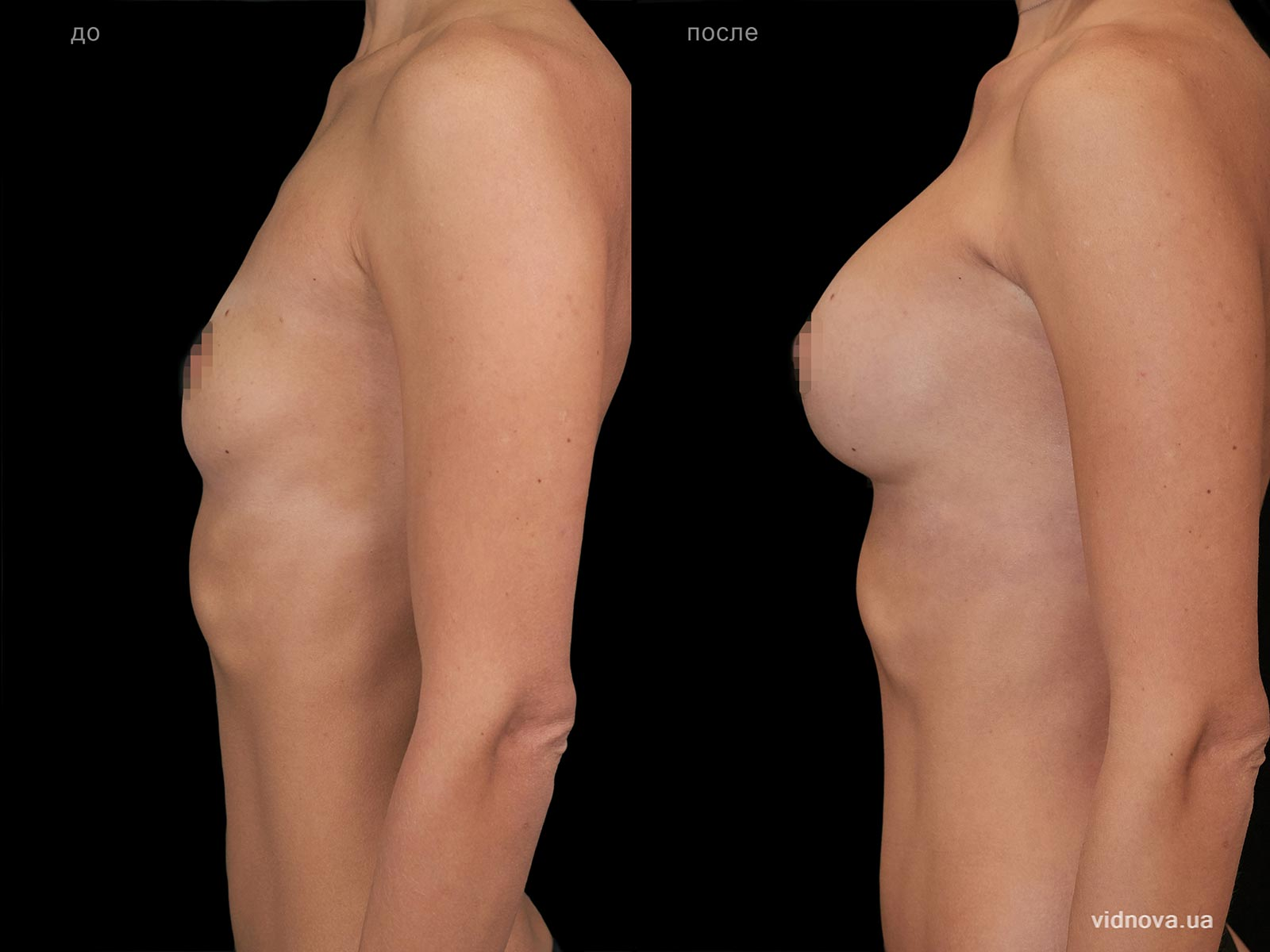 Пластика груди: результаты до и после - Пример №100-2 - Светлана Работенко