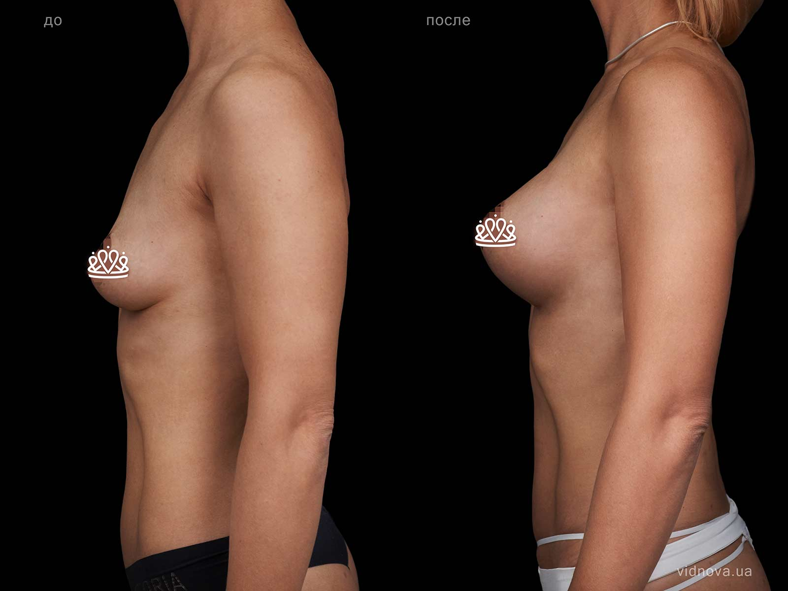 Пластика груди: результаты до и после - Пример №109-2 - Светлана Работенко