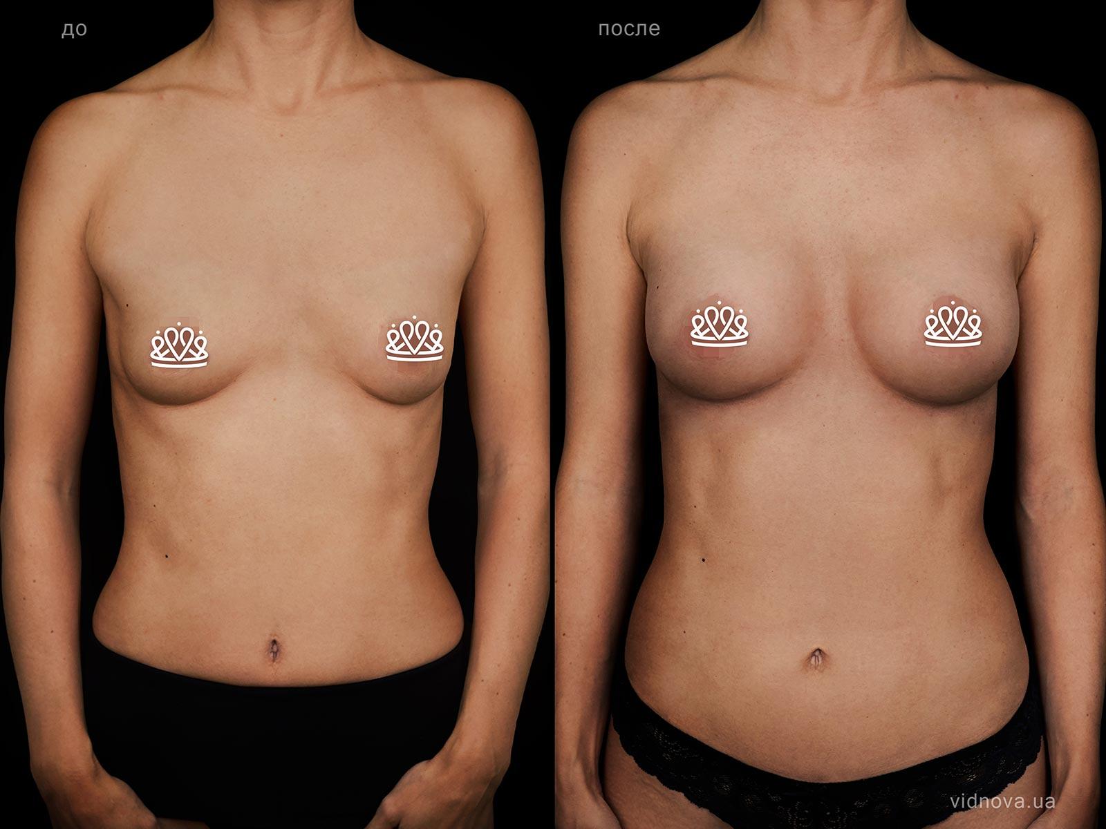 Пластика груди: результаты до и после - Пример №122-0 - Светлана Работенко