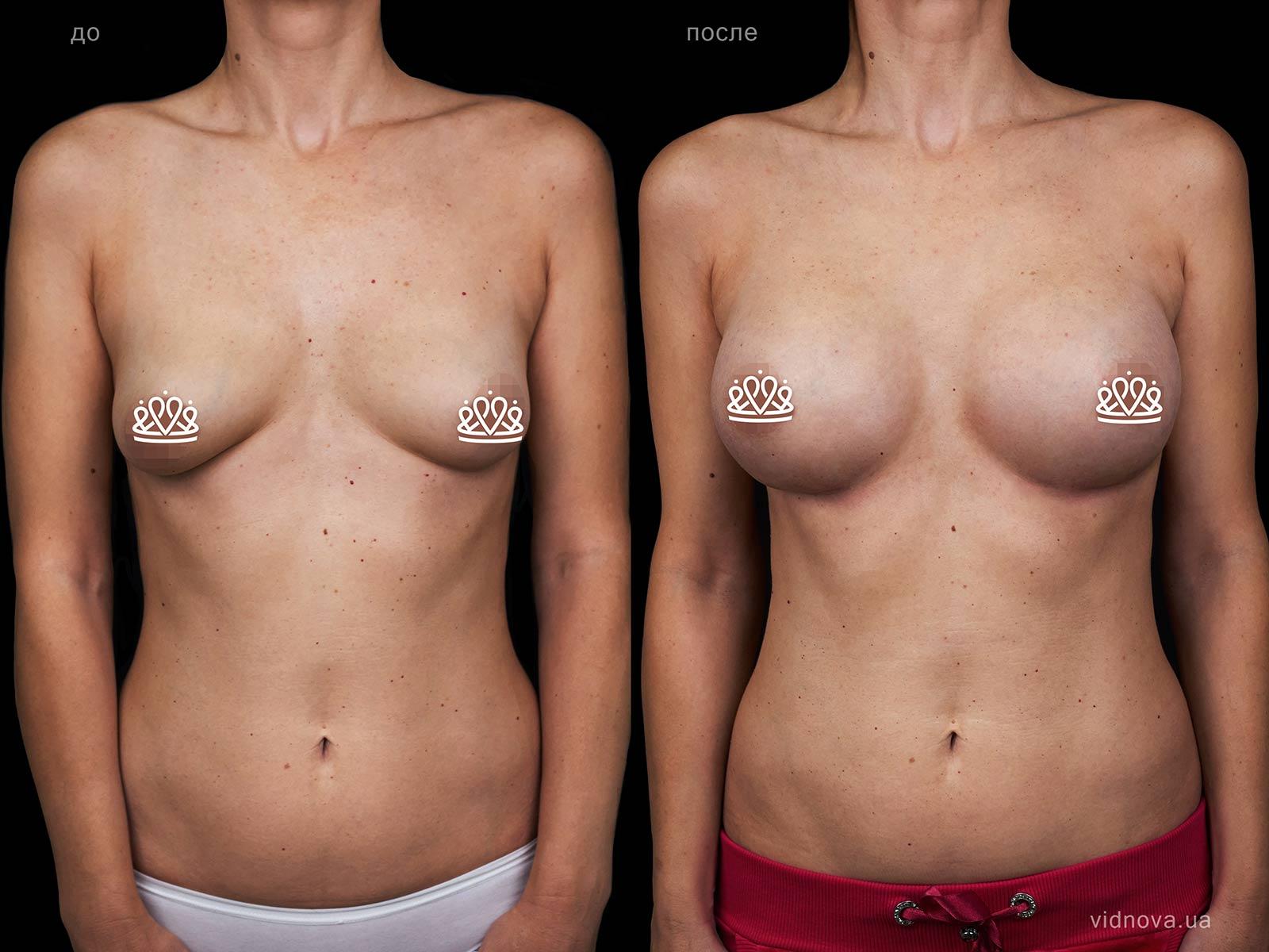 Пластика груди: результаты до и после - Пример №118-0 - Светлана Работенко