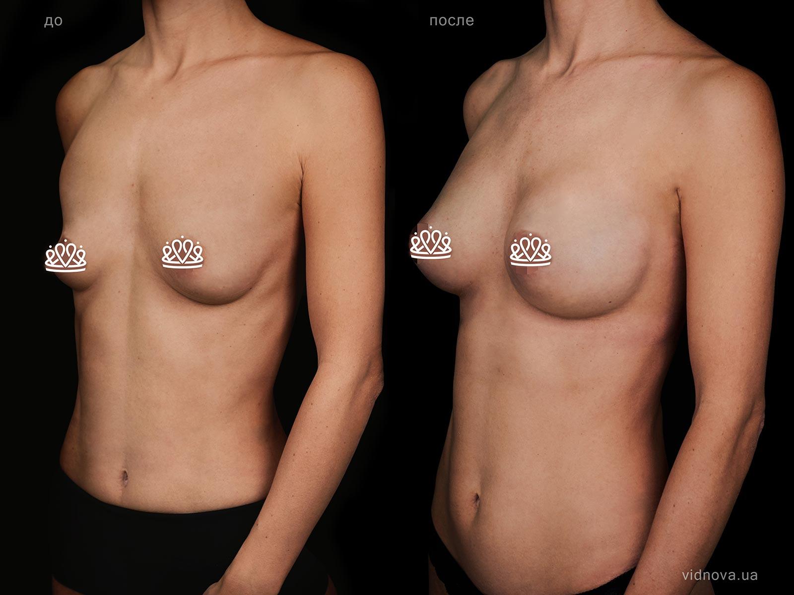 Пластика груди: результаты до и после - Пример №122-1 - Светлана Работенко
