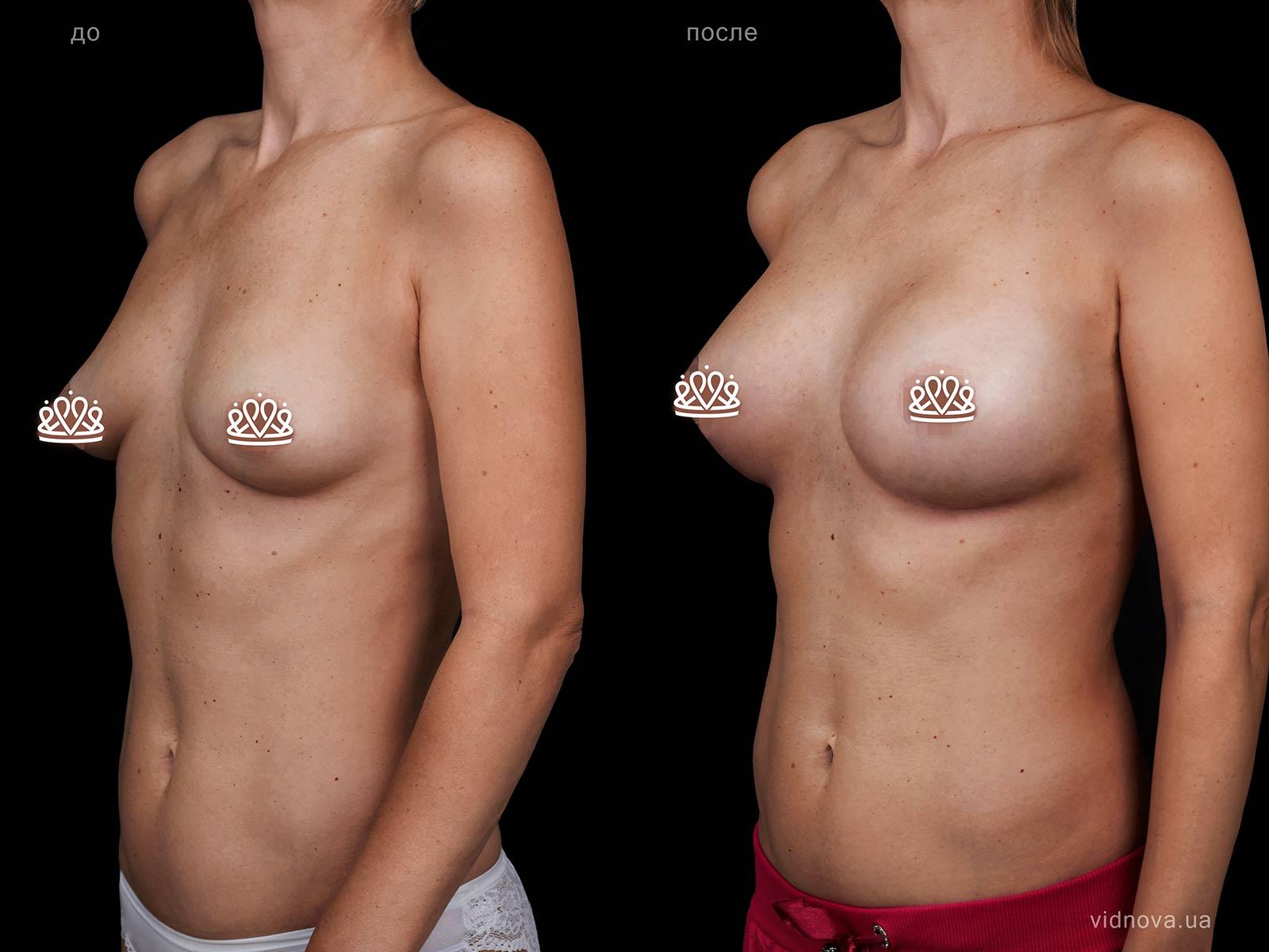 Пластика груди: результаты до и после - Пример №118-1 - Светлана Работенко