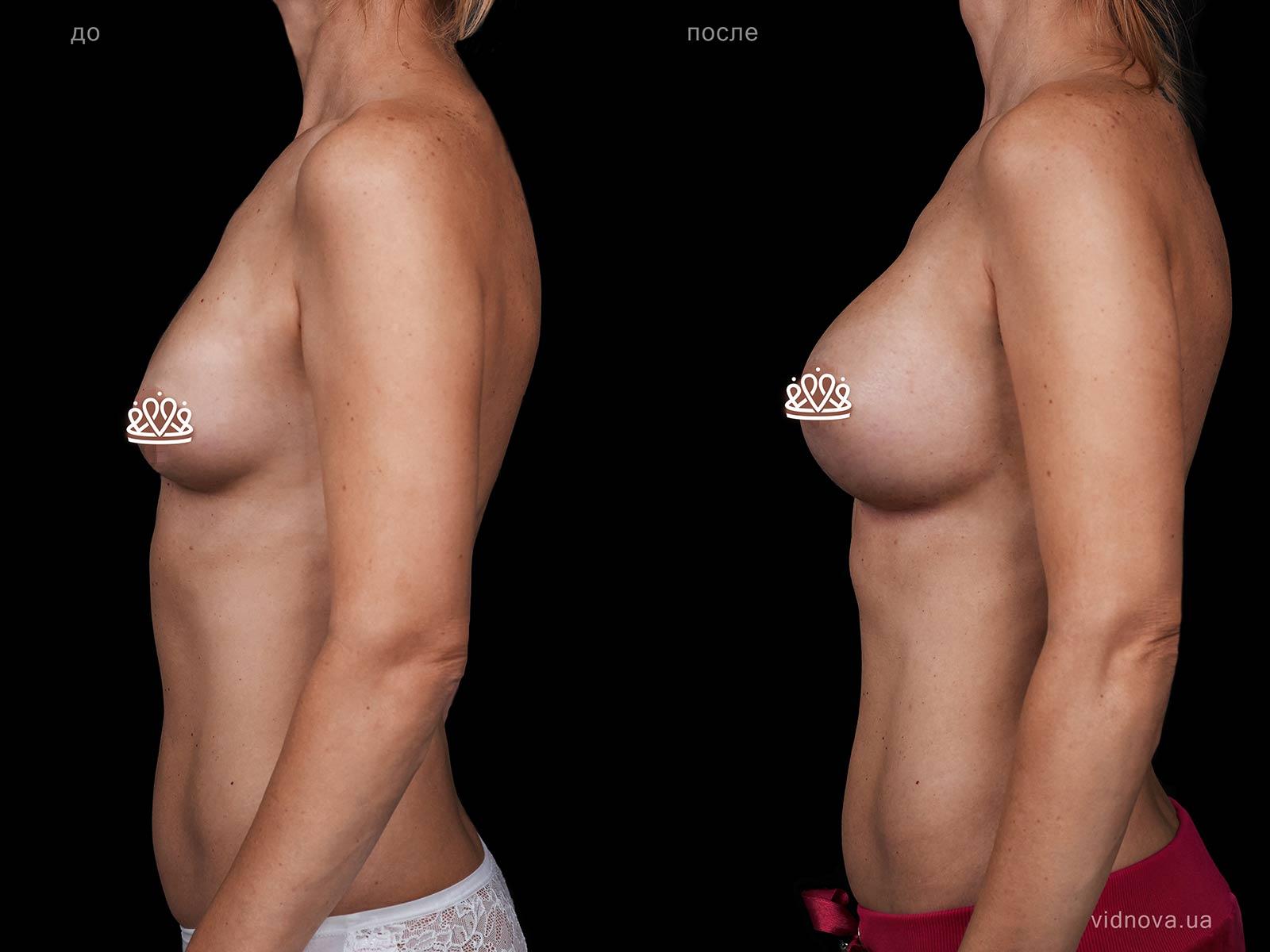 Пластика груди: результаты до и после - Пример №118-2 - Светлана Работенко