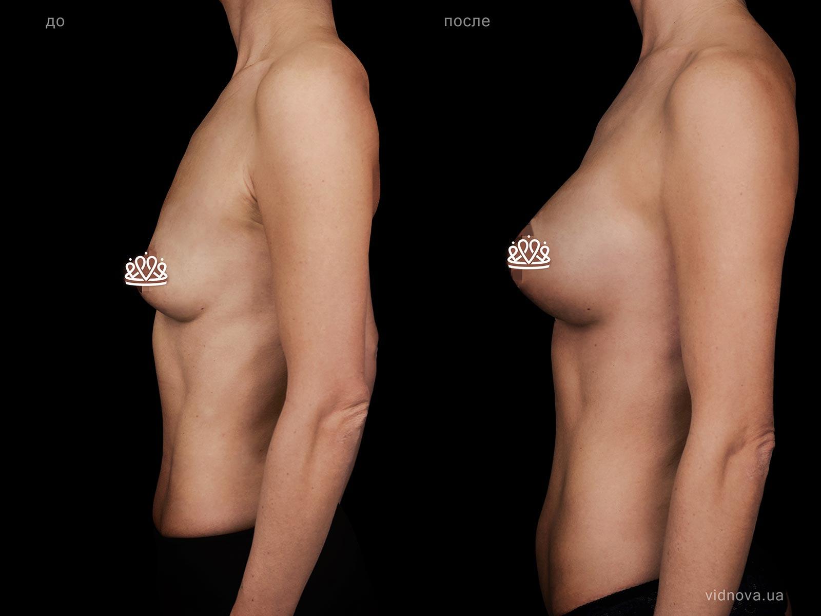 Пластика груди: результаты до и после - Пример №122-2 - Светлана Работенко