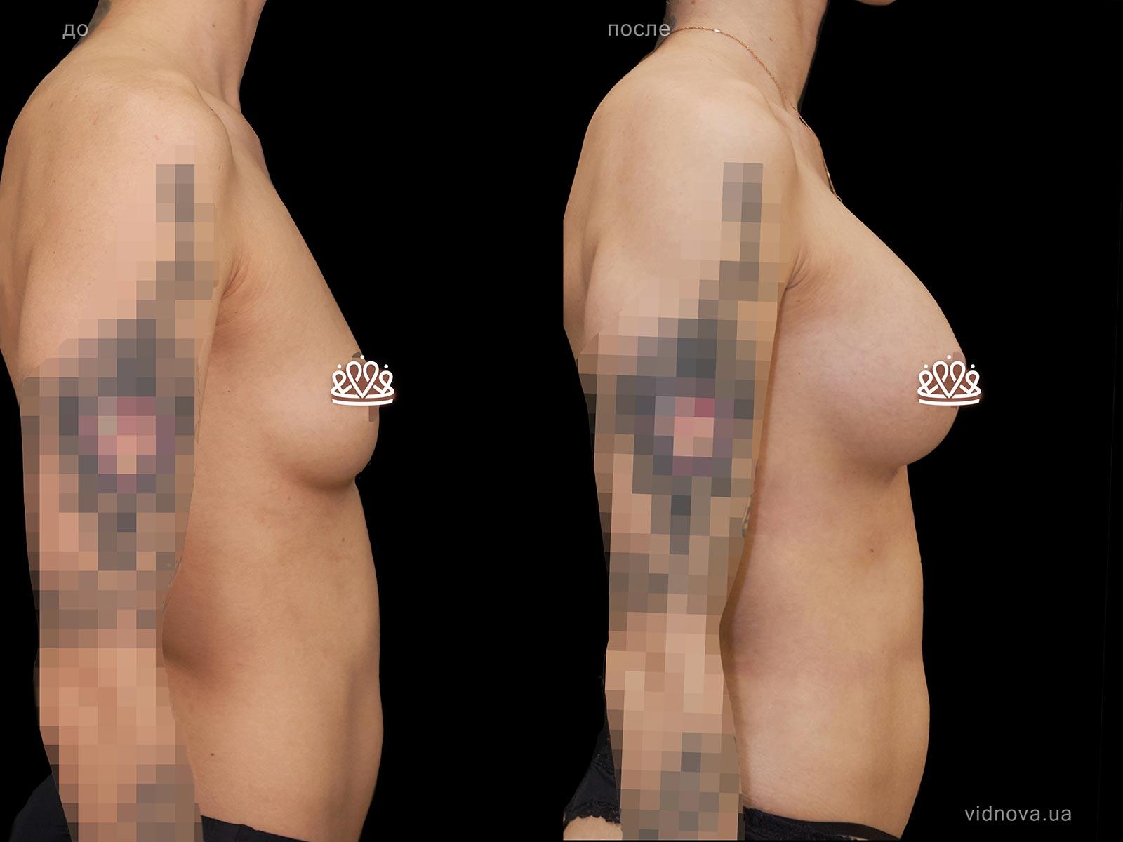 Пластика груди: результаты до и после - Пример №112-2 - Светлана Работенко