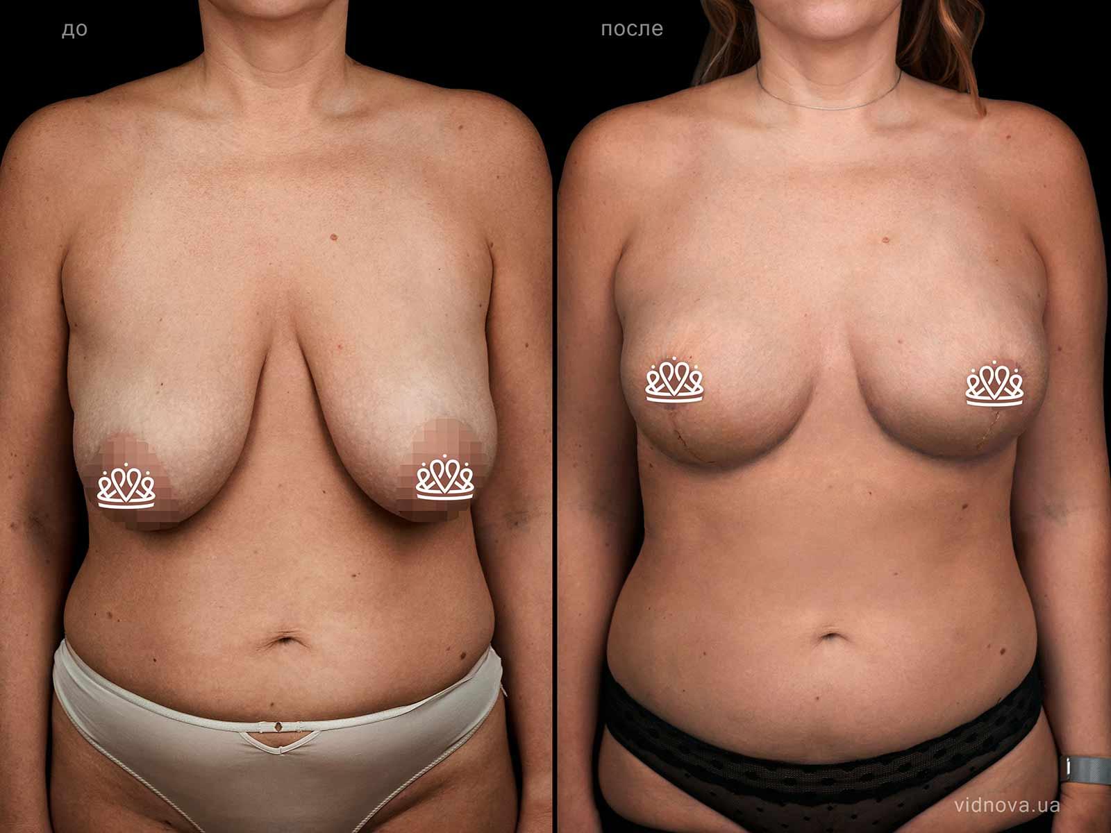 Пластика груди: результаты до и после - Пример №128-0 - Светлана Работенко
