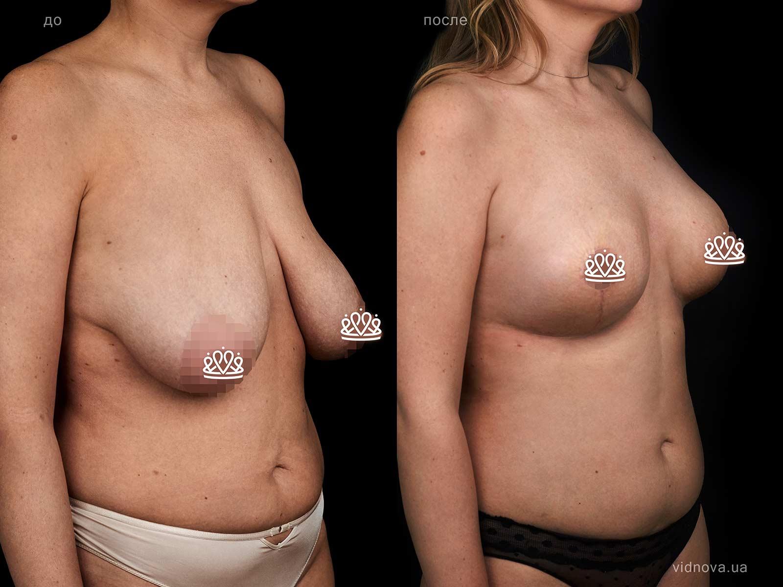 Пластика груди: результаты до и после - Пример №128-1 - Светлана Работенко