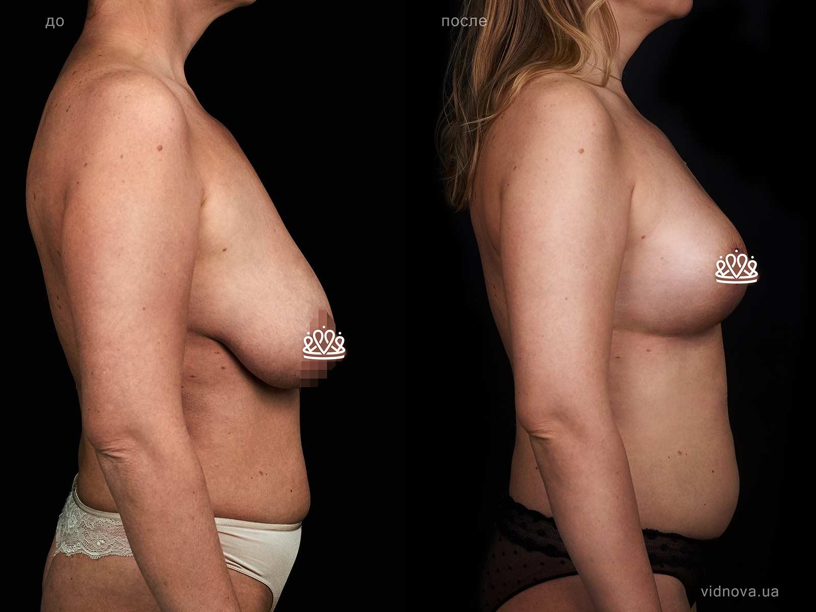 Пластика груди: результаты до и после - Пример №128-2 - Светлана Работенко