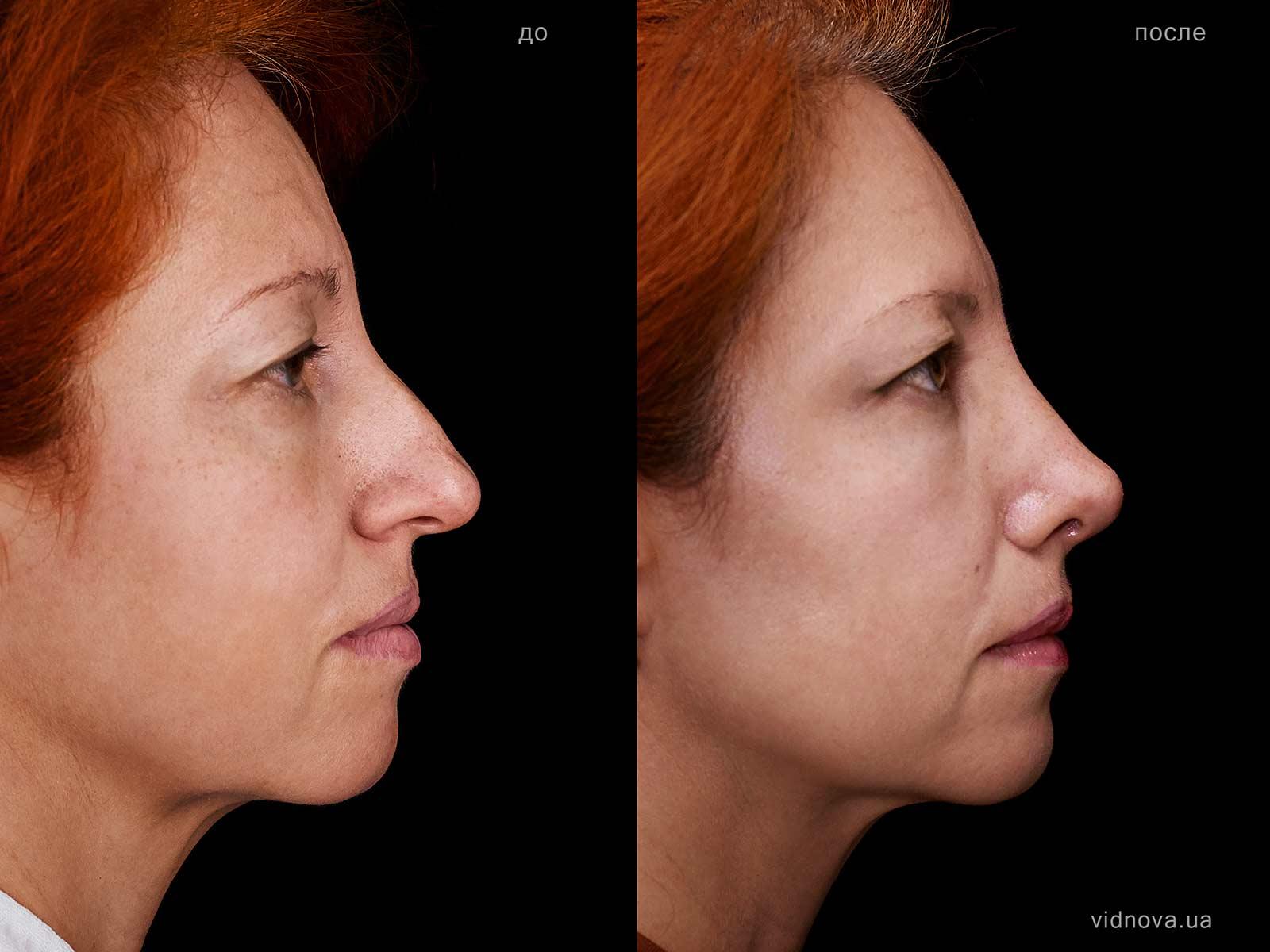 Пластика носа - ринопластика rino rabotenko 2 s