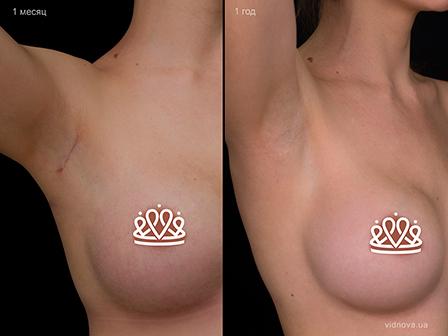Пластика груди: результаты до и после - Пример №110-3 - Светлана Работенко