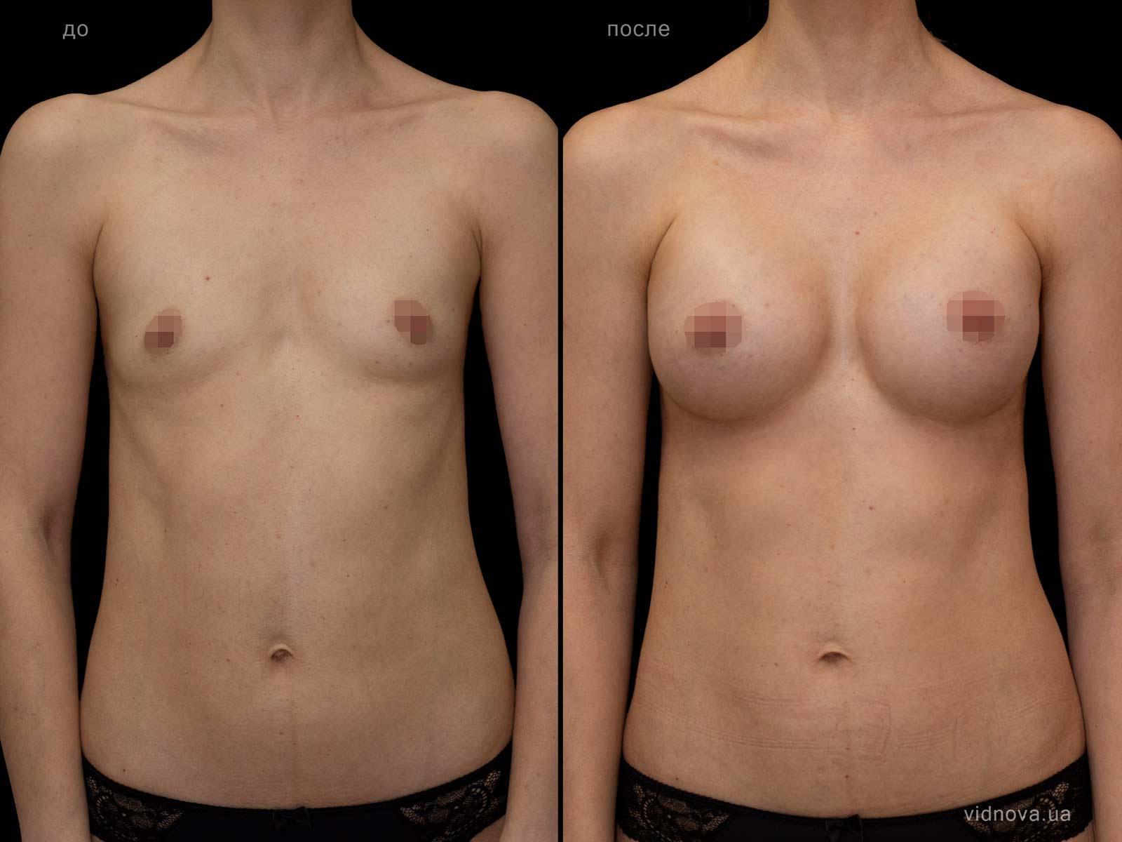 Пластика груди: результаты до и после - Пример №106-0 - Светлана Работенко
