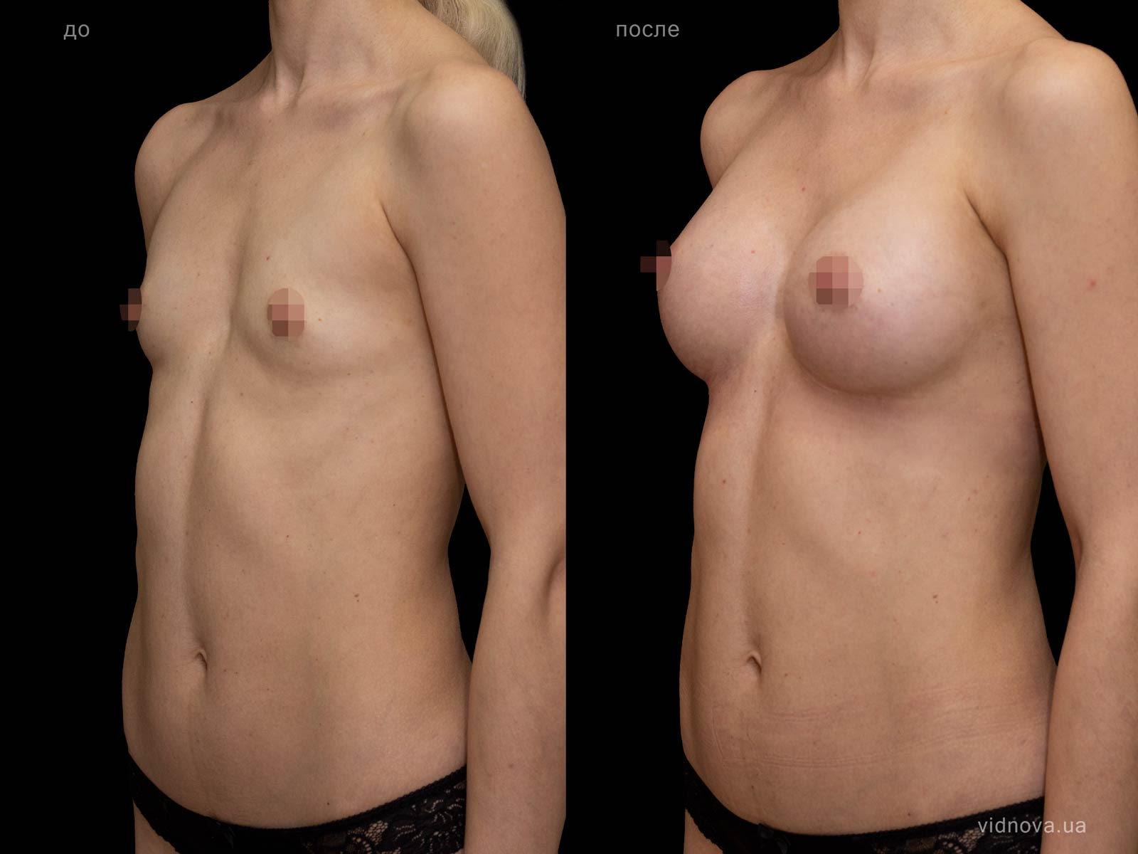Пластика груди: результаты до и после - Пример №106-1 - Светлана Работенко