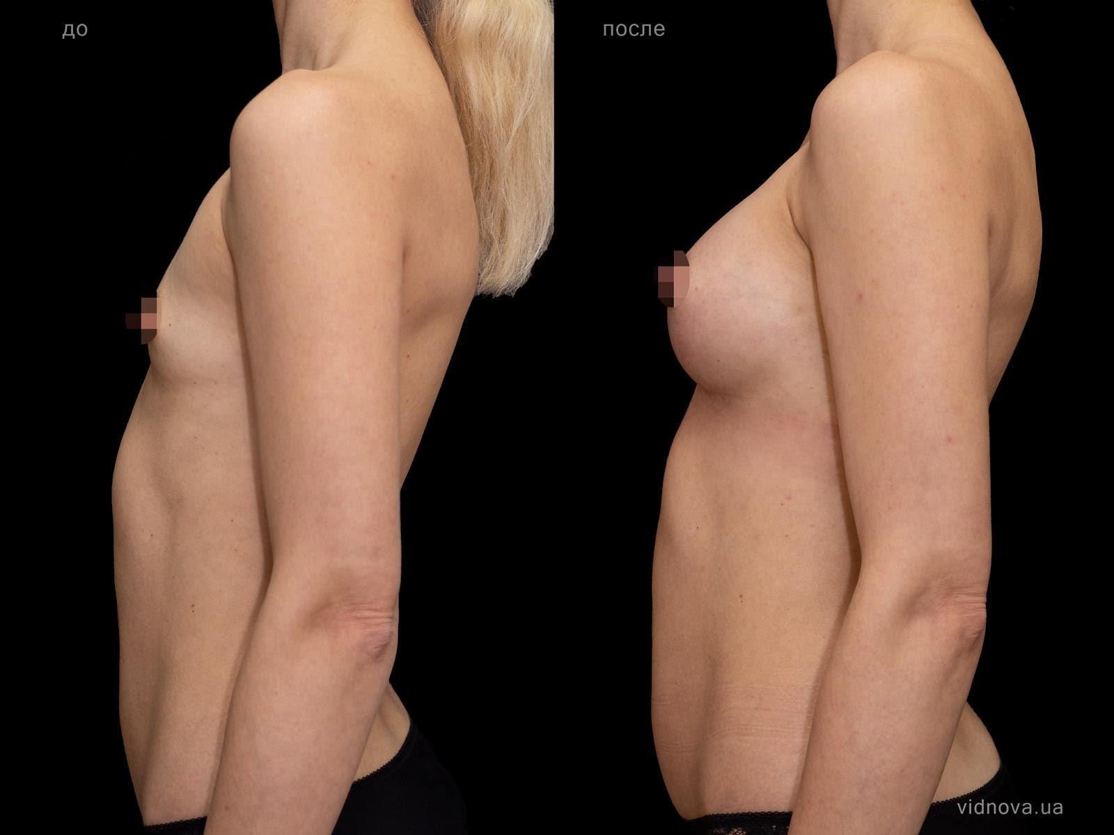 Пластика груди: результаты до и после - Пример №106-2 - Светлана Работенко